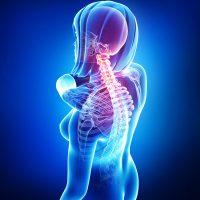 X-ray Anatomy of female neck pain