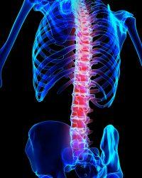 3D illustration, spine painful skeleton x-ray, medical concept.