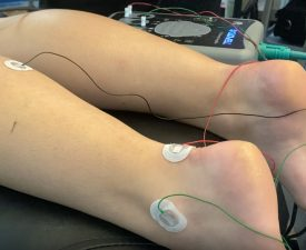 emg-ncs test performed on a patient's legs